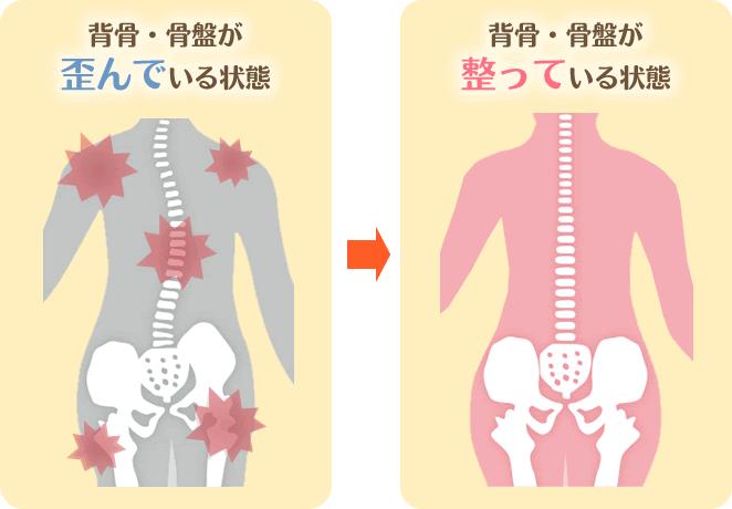 背骨が歪んでいる状態・整っている状態のイメージ図